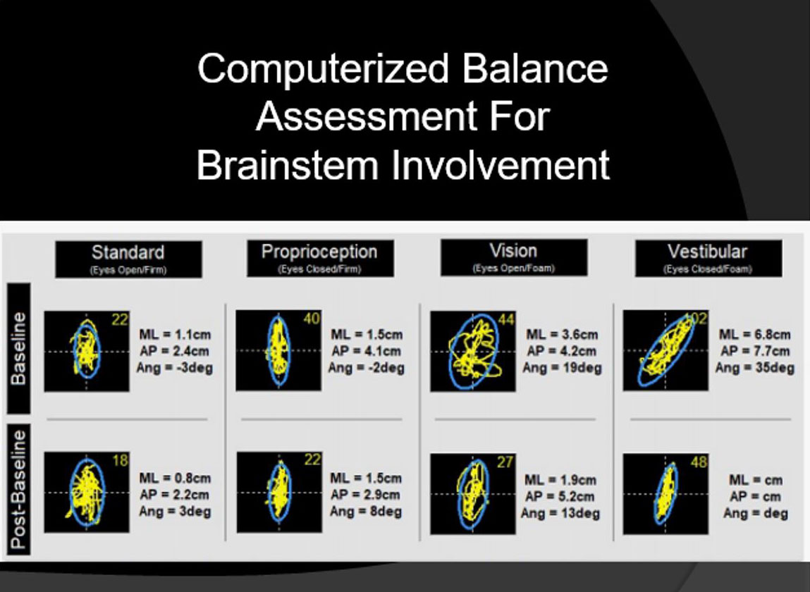 Computerized Balance Assessment For Brainstem Involvement
