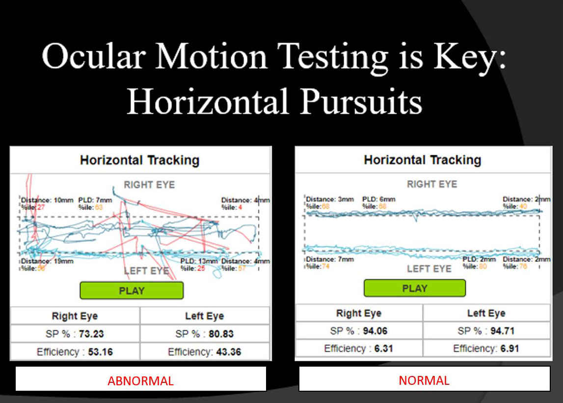 Ocular Motion Testing is Key Horizontal Pursuits