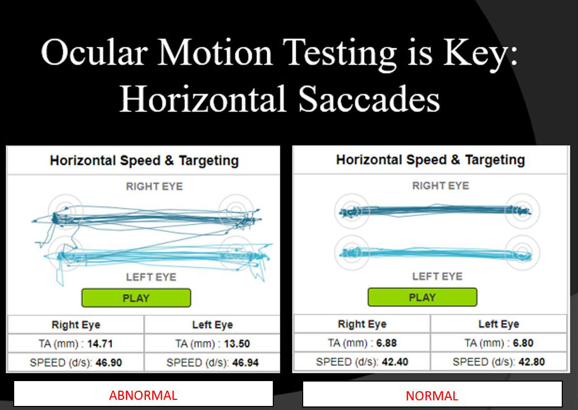 Ocular Motion Testing is Key Horizontal Saccades