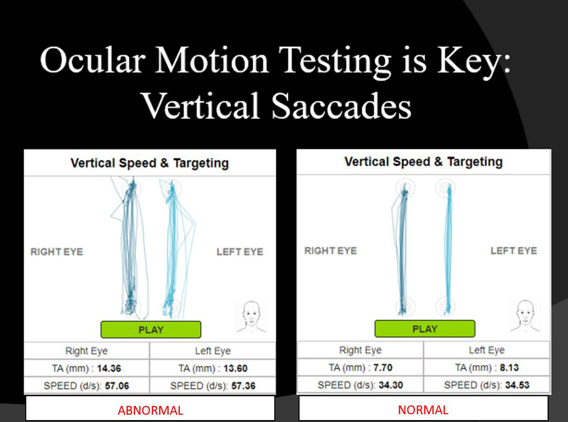 Ocular Motion Testing is Key Vertical Saccades