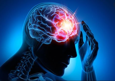 Concussion/Post-Concussion Syndrome — Having Concussion (mTBI) Symptoms that don't Go Away Is Scary and Stressful.