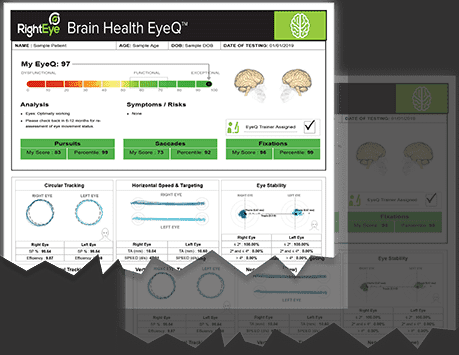 Right Eye Brain Health EyeQ